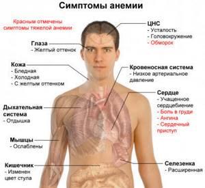 Малокровие: причины, симптомы и лечение заболевания