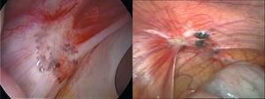 Эндометриоз матки: классификация патологии и ее формы, причины и механизм развития болезни, лечебно-диагностические мероприятия, возможные осложнения и прогноз на выздоровление