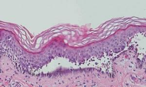Что такое пузырчатка: причина появления заболевания, признаки и симптомы различных форм патологии, методы лечения и профилактики у взрослых и детей