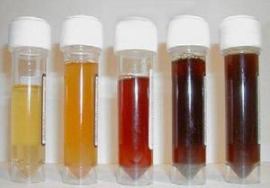 Гломерулонефрит: общие клинические проявления, причины, тактика лечения и профилактики заболевания