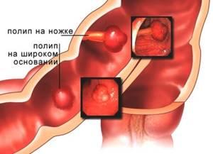 Полип в прямой кишке: причины образования, возможные осложнения, методы обследования и лечения, правила питания