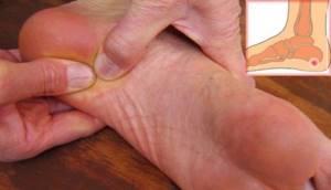 Пяточная шпора: симптомы, профилактика, народное лечение
