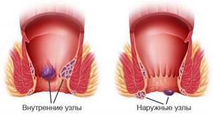 Симптомы и лечение геморроя в домашних условиях: разновидности и стадии заболевания, основные причины развития и профилактика патологии