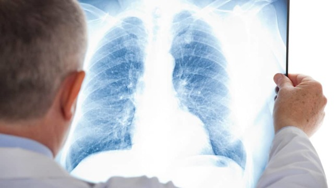 Абсцесс легкого: причины и формы заболевания, возможные осложнения, диагности и методы терапии