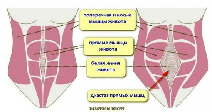 Как лечить грыжу белой линии живота: симптомы заболевания и особенности анатомии зоны, терапевтические методы и народные способы, можно ли избежать операции