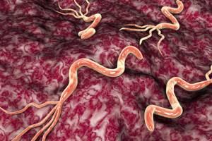 Язва двенадцати перстной кишки: симптомы, диета, и лечение