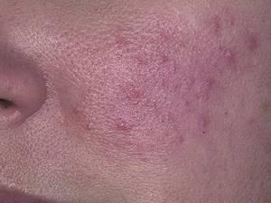 Розацеа на лице: причины появления, формы и стадии заболевания, характерные симптомы и методы лечения патологии, особенности питания при дерматозе