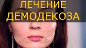 Демодекоз у человека: симптомы, лечение народными средствами и аптечными препаратами, профилактика заболевания