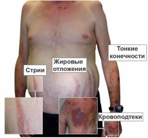 Болезнь Иценко-Кушинга: симптомы, причины и лечение синдрома, особенности проявления заболевания у детей и взрослых