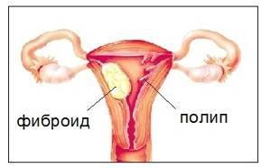 Полипы в матке: причины образования, характерные проявления, возможные последствия и подходы к лечению