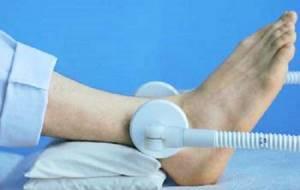 Лечение артрита голеностопного сустава: причины развития заболевания и его классификация, прогноз и осложнения, консервативная терапия и применение народных средств