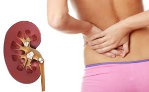 Мочекаменная болезнь: причины и симптомы заболевания, консервативная терапия и способы лечения в домашних условиях