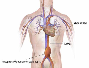 Аневризма брюшного отдела аорты: симптомы и варианты лечения заболевания, причины возникновения и профилактика болезни