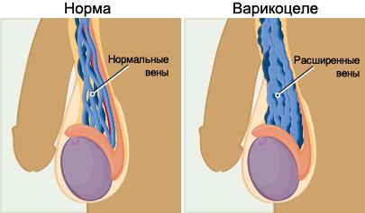 Варикоцеле у мужчин: что это такое. симптомы и признаки заболевания, методы лечения и профилактики