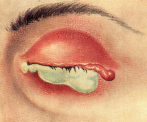 Признаки гонореи у мужчин и женщин: особенности диагностики и характерные симптомы, лечение заболевания и способы профилактики