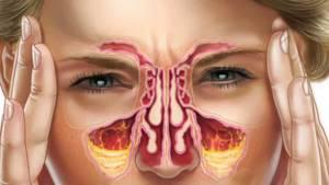 Хронический гайморит: причины, симптомы и комплексное лечение