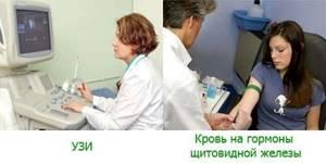 Узловой зоб: природа возникновения, характерные признаки, методы диагностики и лечения