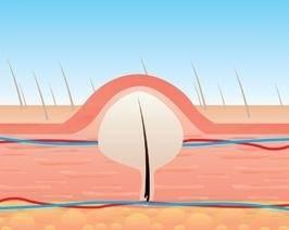 Вросший волос в области бикини, на ногах: причины вростания, как избавиться в домашних условиях и предотвратить образование шишек, когда обращаться к врачу