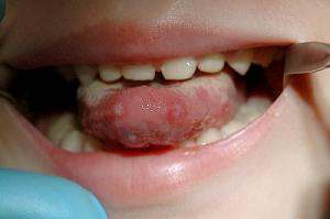 Кандидоз полости рта: причины заболевания, сопутствующие признаки и методы лечения
