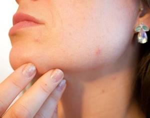 Как быстро вылечить простуду на губе в домашних условиях