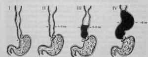 Ахалазия кардии пищевода: причины возникновения, характерные признаки, методы диагностики и лечения