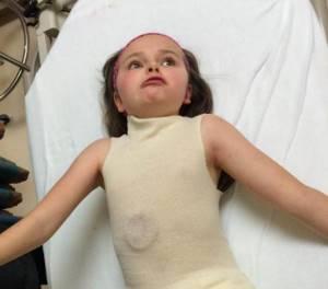 Синдром Ретта: причины возникновения, характерные признаки, методы диагностики и лечения