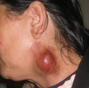 Туляремия: источники заражения, характерные признаки, возможные осложнения и методы лечения