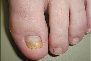 Что такое онихомикоз ногтей и как его лечить: провоцирующие факторы и типичные симптомы заражения, классификация патологии, методы лечения в домашних условиях аптечными препаратами и народными средствами