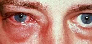 Аденовирусный конъюнктивит: провоцирующие факторы, признаки недуга и возможные осложнения, методы лечения и меры профилактики