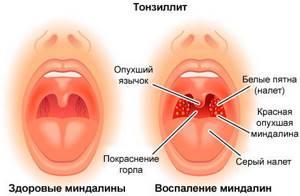 Хронический тонзиллит: причины развития и симптомы заболевания, лечение патологии у взрослых и детей в домашних условиях лекарственными препаратами и народными средствами