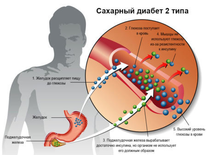 Несахарный диабет: причины возникновения заболевания, сопутствующие симптомы и методы лечения