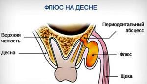 Народные средства от зубной боли - самые действенные рецепты.