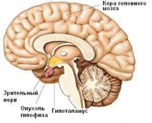 Аденома гипофиза: причины и виды заболевания, сопутствующие признаки, методы терапии и возможные последствия