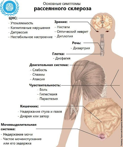 Рассеянный склероз: причины возникновения, характерные проявления, сроки жизни и методы лечения