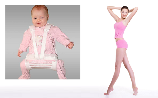 Дисплазия тазобедренных суставов у новорожденных детей: симптомы и степени тяжести, виды заболевания и существующие способы лечения, советы родителям